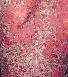 红皮型牛皮癣症状是什么