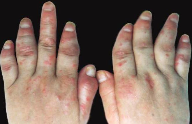 关节型银屑病怎么鉴别诊断